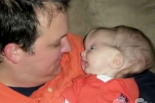 Όταν γεννήθηκε το κεφάλι του ήταν γεμάτο με τεράστια εξογκώματα - 20 μήνες μετά κανείς δεν περίμενε αυτή την εξέλιξη