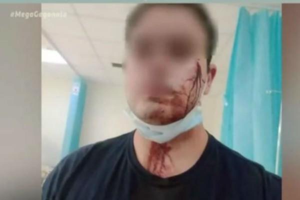 Μενίδι: Άγρια επίθεση σε αστυνομικούς επειδή τους χάλασαν το γλέντι (Video)