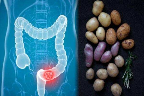 Καρκίνος: Πώς συνδέεται με τις πατάτες που τρώτε; Δώστε προσοχή