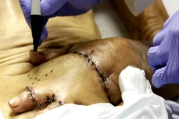 Η μαγεία της Ιατρικής: Του έραψαν το χέρι στο στομάχι για έναν πανέξυπνο λόγο!