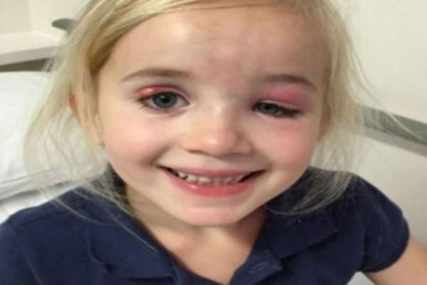 Είπαν στη μικρή πως είχε απλά μια μόλυνση στο μάτι - Λίγες ημέρες μετά η μητέρα της είδε κάτι ανατριχιαστικό