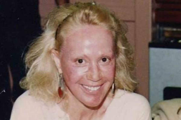 Φρίκη με τη Ζωή Λάσκαρη: Εμφανίστηκε με καμένο πρόσωπο - Φωτογραφία ντοκουμέντο