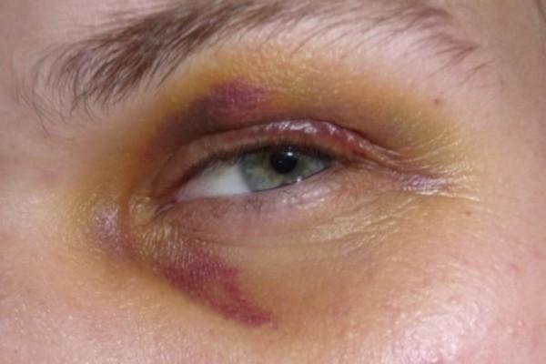 Το σαρδάμ και το μαυρισμένο μάτι: Το ανέκδοτο της ημέρας (25/11)