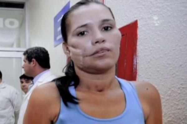 Θα σας πέσει το σαγόνι μόλις δείτε τι έβγαλαν οι γιατροί από το πρόσωπο αυτής της γυναίκας