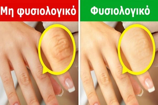 Κοιτάξτε τώρα προσεκτικά τα χέρια σας. Εάν έχετε κάποιο από αυτά τα 9 σημάδια, επισκεφθείτε οπωσδήποτε τον γιατρό σας!