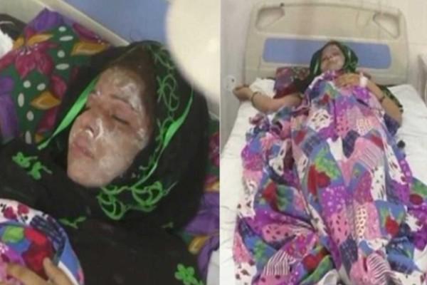 32χρονος έριξε οξύ στο πρόσωπο της γυναίκας του επειδή γέννησε κορίτσι και όχι αγόρι