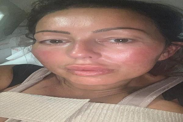 47χρονη πήγε για πλαστική στήθους - Κατά τη διάρκεια της επέμβασης... (photo)