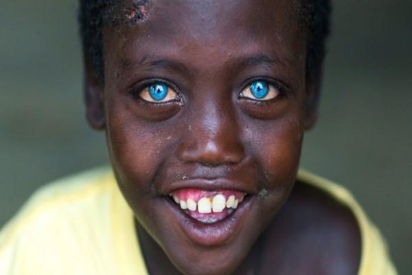 Αυτό το αγοράκι από την Αιθοπία έχει τα πιο όμορφα μάτια που έχουμε δει