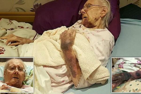 98χρονη γιαγιά είχε γεμίσει με μελανιές - Όταν ο εγγονός της κατάλαβε ποιος της το έκανε...