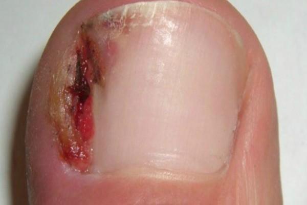 7 θαυματουργές θεραπείες για να απαλλαγείτε από τις παρανυχίδες και τα νύχια που παίνουν μέσα στο δέρμα