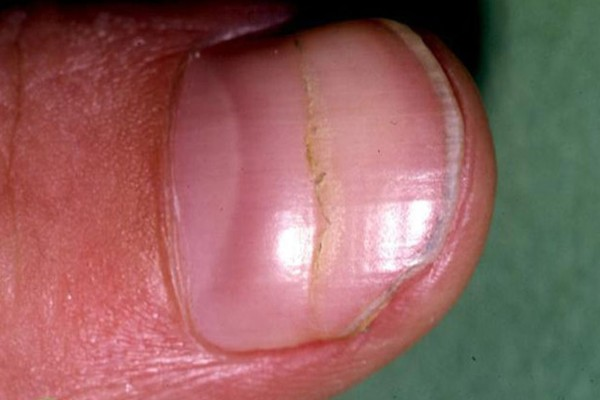 Νύχια: Δείτε αν λειτουργεί σωστά η καρδιά σας
