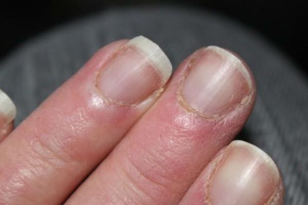 Τα νύχια σας σπάνε συνεχώς; Οι τροφές που πρέπει να εντάξετε στην διατροφή σας