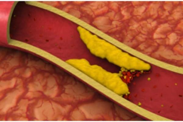 Χοληστερίνη: Οι 5 τροφές που