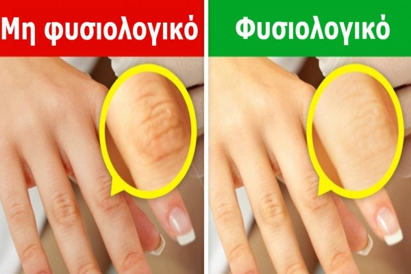 Κοιτάξτε τώρα προσεκτικά τα χέρια σας - Εάν έχετε κάποιο αυτά τα 9 σημάδια, επισκεφθείτε οπωσδήποτε τον γιατρό σας!
