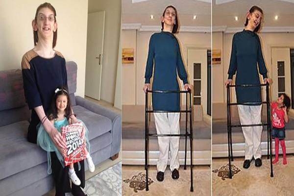 Αυτή είναι η πιο ψηλή έφηβη στον πλανήτη - Έχει ύψος 2.14 μέτρα, χέρια σαν κουπιά και φοράει 47 νούμερο παπούτσι