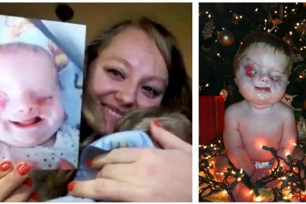 28χρονη μητέρα αρνήθηκε να κάνει έκτρωση και γέννησε ένα παραμορφωμένο μωρό χωρίς μάτια - Σήμερα είναι... (Video)