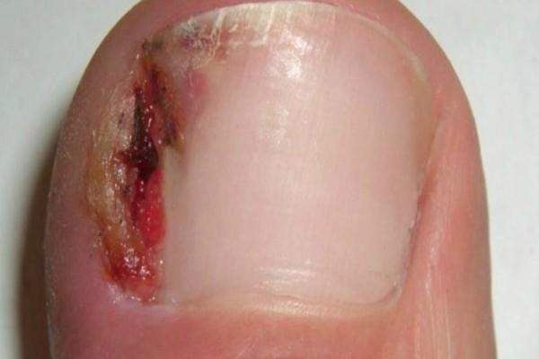 7 θαυματουργές θεραπείες για να απαλλαγείτε από τις παρανυχίδες και τα νύχια που μπαίνουν μέσα στο δέρμα