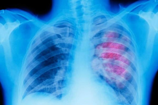 Το εμβόλιο κατά του καρκίνου του πνεύμονα είναι πλέον γεγονός