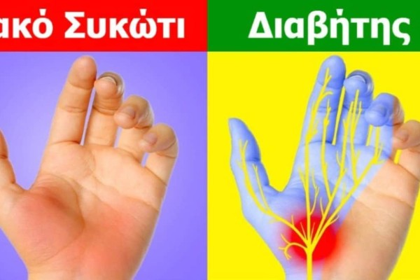 7 ανησυχητικά σημάδια στα χέρια που φανερώνουν την κατάσταση της υγείας μας - Με ποιες παθήσεις συνδέονται
