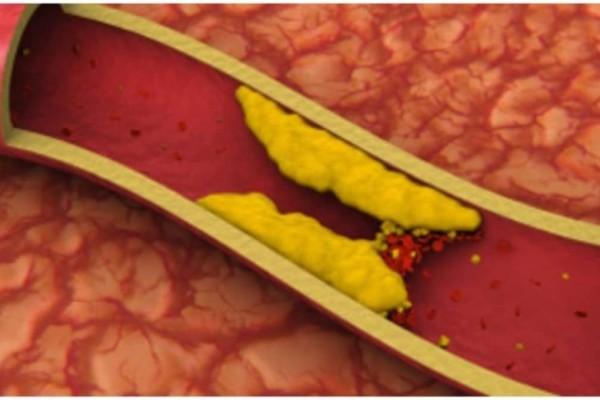 Χοληστερίνη: Οι top -10 τροφές που καθαρίζουν τις αρτηρίες