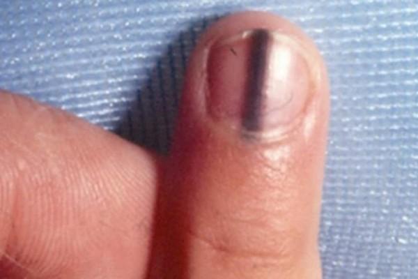 Παρατήρησε μια μαύρη γραμμή μέσα στο νύχι της - Τότε ο γιατρός της αποκάλυψε ότι… (Video)