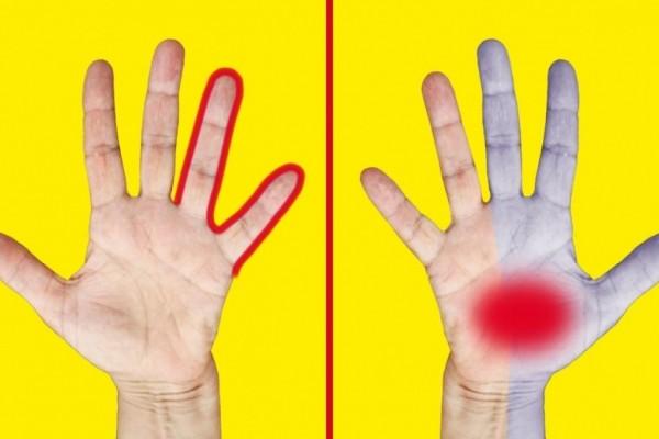 9 επικίνδυνα σημάδια στα χέρια που προειδοποιούν για πολύ σοβαρότερα προβλήματα υγείας - Μεγάλη προσοχή στο Νο.6!