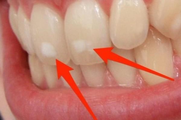Που οφείλονται αυτά τα λευκά σημάδια στα δόντια - Τι πρέπει να κάνετε