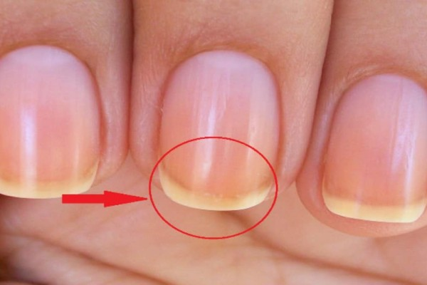 Έχετε αναρωτηθεί ποτέ γιατί τα νύχια σας είναι πάντα άσπρα στις άκρες - Δείτε λόγο...