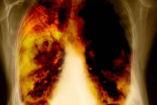 Σώζει ζωές: Τα 7 σημάδια που προειδοποιούν για καρκίνο των πνευμόνων