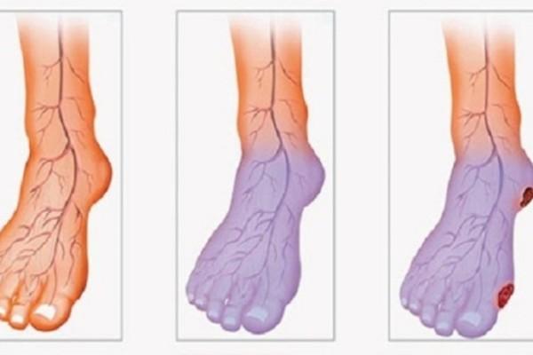 Έχετε συνέχεια κρύα χέρια ή πόδια; Δείτε από τι πάσχετε και πως θα το αντιμετωπίσετε!