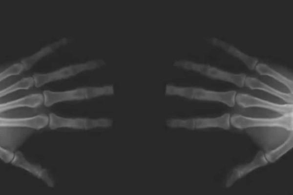 Σας αρέσει να κάνετε κρακ τα δάχτυλα σας; Δείτε τι συμβαίνει στην πραγματικότητα στο σώμα σας όταν το κάνετε!(Video)