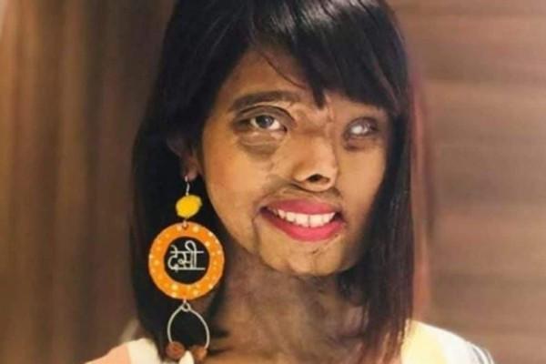 Ο πατέρας της, της έριξε οξύ όταν ήταν παιδί - Σήμερα είναι μοντέλο και εμπνέει τους πάντες