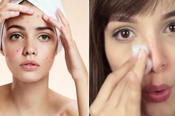 9 καταπληκτικοί τρόποι για να εξαφανίσετε την ακμή από το πρόσωπό Σας - Με τoν 7o θα δείτε μεγάλη διαφορά!