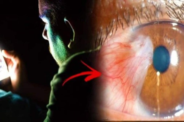 Εμφάνισε καρκίνο στα μάτια εξαιτίας μιας συνήθειας που έχουμε όλοι - Την επόμενη φορά προσέξτε στο κινητό σας το…