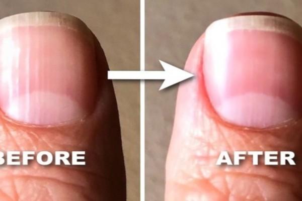 Μεγάλη Προσοχή: Δείτε τι είναι αυτές οι γραμμές στα νύχια και πώς μπορείτε να τις μειώσετε