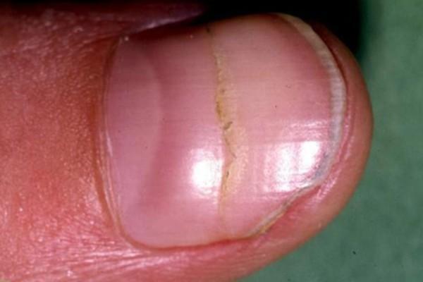 Πώς τα νύχια των χεριών