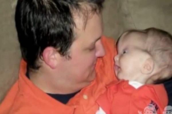 Όταν γεννήθηκε το κεφάλι του ήταν γεμάτο με τεράστια εξογκώματα - 20 μήνες μετά κανείς δεν περίμενε αυτή την εξέλιξη… (Video)