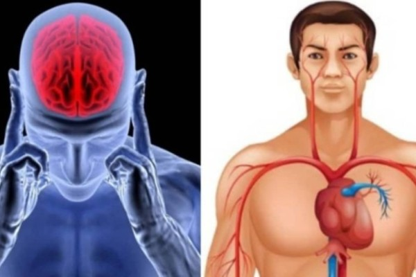 Η «θαυματουργή» τροφή που μας προστατεύει από έμφραγμα και εγκεφαλικό