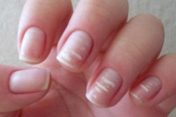 Τα σημάδια στα νύχια σας που σχετίζονται με προβλήματα σε καρδιά και συκώτι