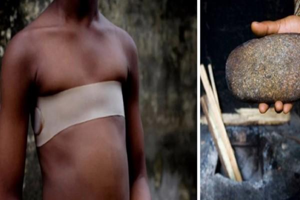 Σιδέρωμα στήθους - Η πρακτική από την Αφρική που έφτασε στην Ευρώπη και σιγά σιγά στην Αθήνα
