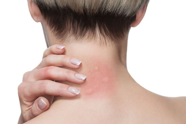 Είστε αλλεργικός στο τσίμπημα κουνουπιών; Αυτά είναι τα ανησυχητικά συμπτώματα!