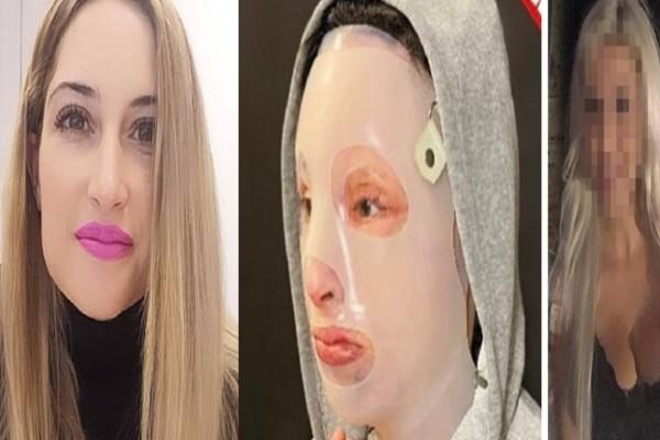 Επίθεση με βιτριόλι: 8ο χειρουργείο για την Ιωάννα - Η φωτογραφία που δημοσίευσε και η συγκλονιστική εξομολόγηση