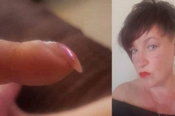 Απίστευτο: 53χρονη ανακάλυψε ότι έχει καρκίνο από φωτογραφία των νυχιών της που ανέβασε στο ίντερνετ