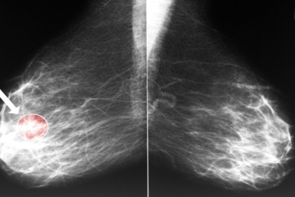 4+1 προειδοποιητικά σημάδια του καρκίνου του μαστού που δεν πρέπει να αγνοήσετε!