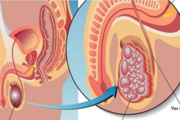 Καρκίνος των όρχεων: Τρέξτε αμέσως στον γιατρό αν έχετε αυτά τα συμπτώματα