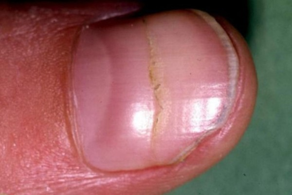 Πώς τα νύχια των χεριών σας φανερώνουν αν έχετε πρόβλημα στην καρδιά