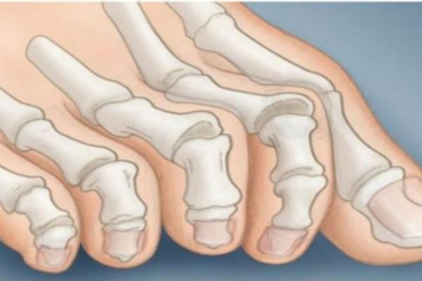 Τα νύχια των ποδιών σας αποκαλύπτουν αν κινδυνεύετε από καρκίνο (Video)