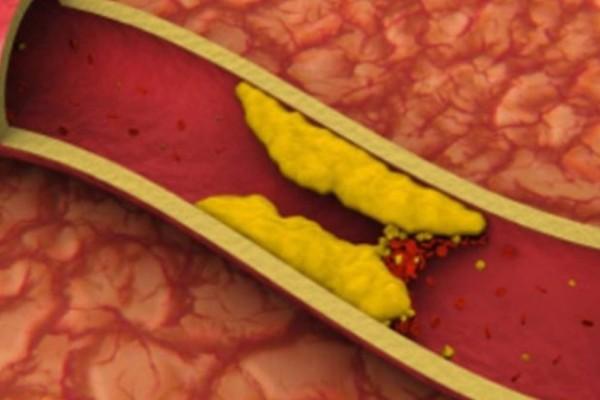 10 τροφές που καθαρίζουν τις αρτηρίες και προστατεύουν από καρδιακές επιπλοκές!