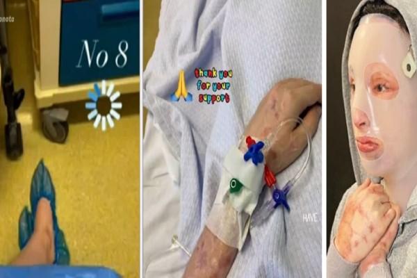 Επίθεση με βιτριόλι: «Έχουν καεί τα χέρια, ο κορμός, ο αυχένας, η ράχη...» - Ο Γολγοθάς της Ιωάννας και η ανατριχιαστική περιγραφή από την χειρουργό της