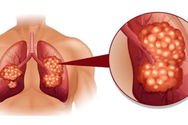 Καρκίνος στον πνεύμονα: 8 σημάδια που πρέπει να σας προβληματίσουν - Τρέξτε στον γιατρό σας